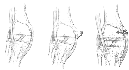 Valgus Knee-Medial Ligament Advancement