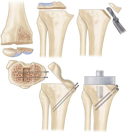 Valgus Knee (VII) Management Of Bone Defect