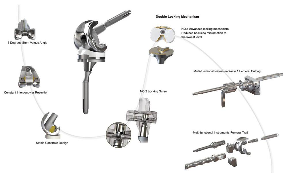 Rsk High Flexion Hybrid Total Knee System