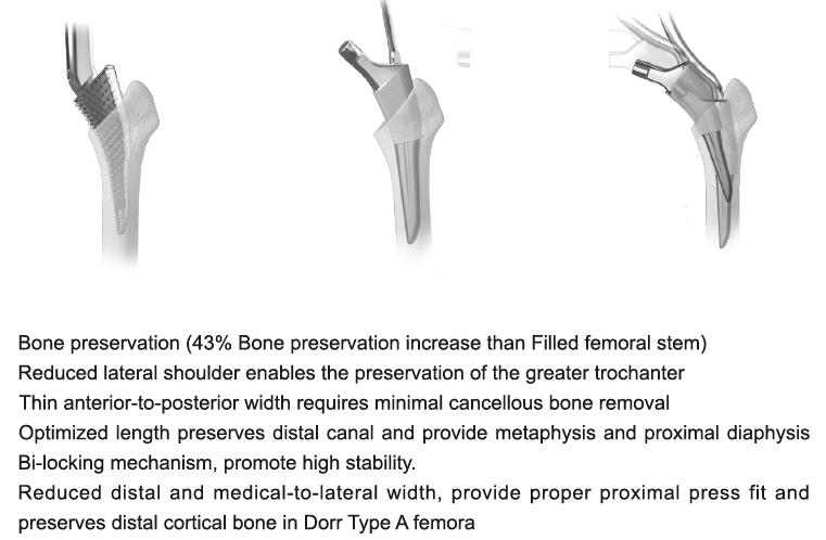 MINI® Bone Preservation Stem