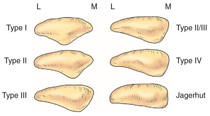 Bony architecture of knee joint- tibia, patella