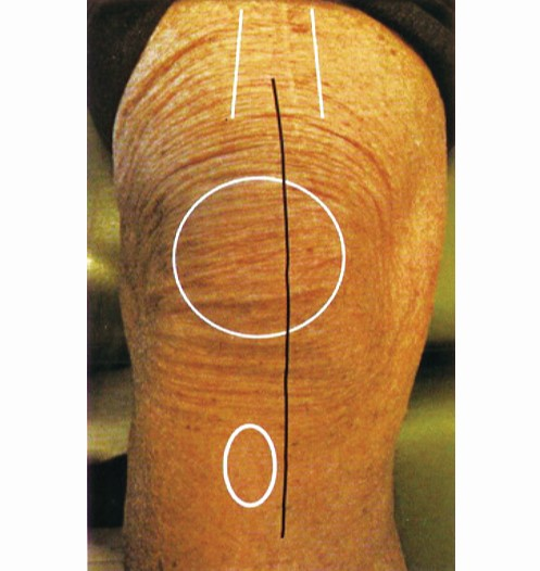 Primary Total Knee Arthroplasty Surgical Technique