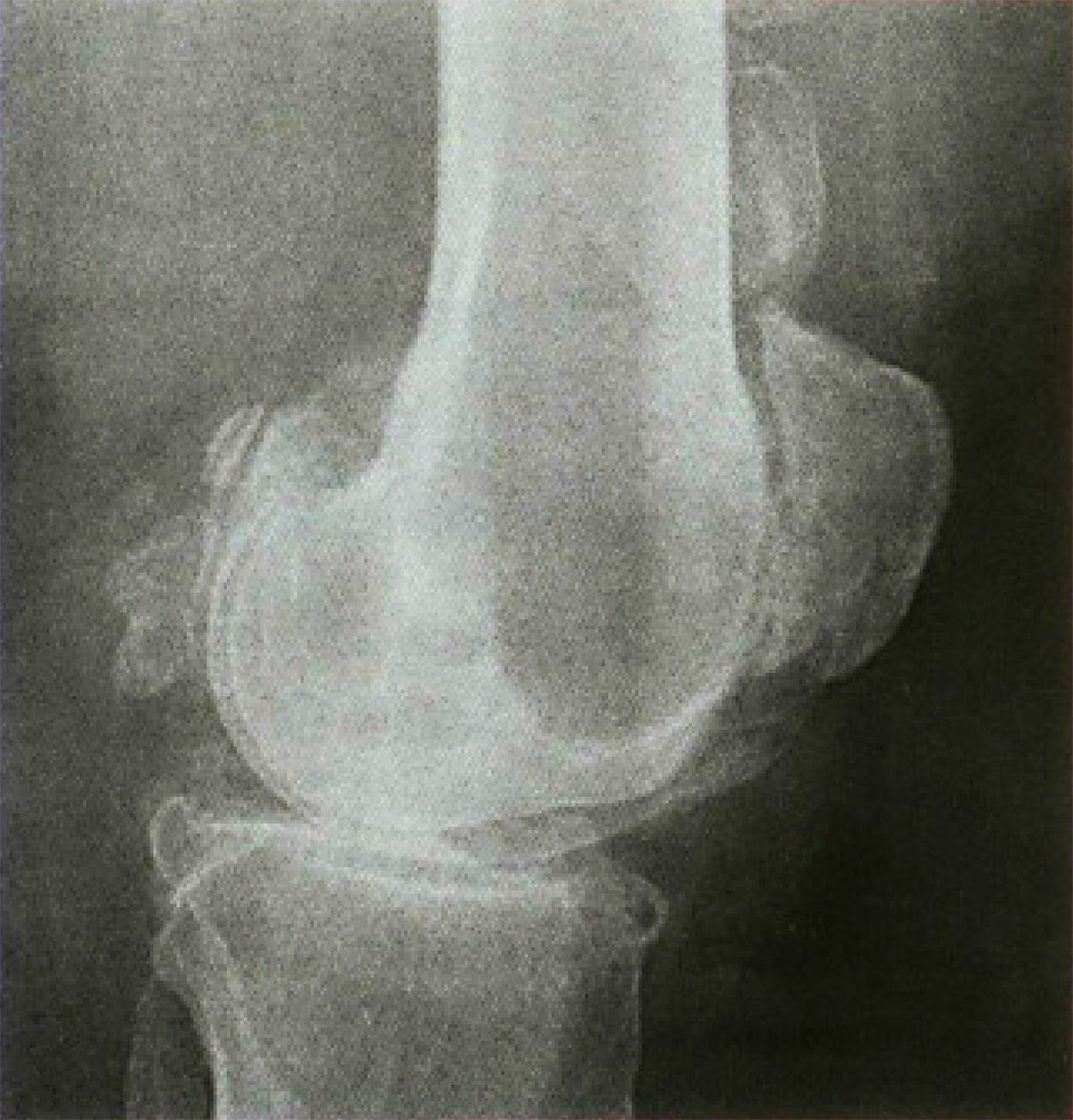 Four-in-one osteotomy