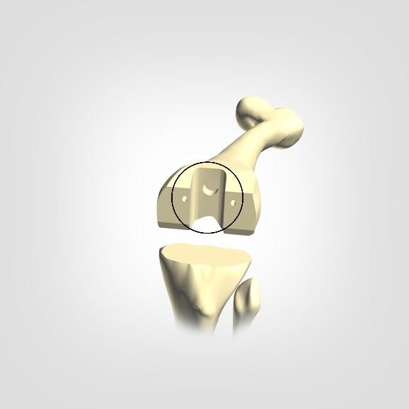 The final treatment of femur side