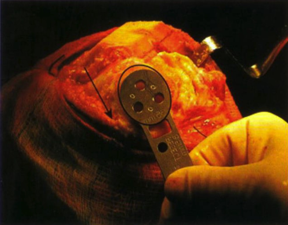 Patellar preparation