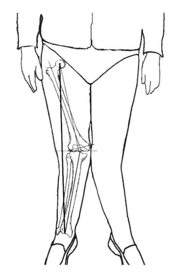 Valgus Knee(I)-Pathology
