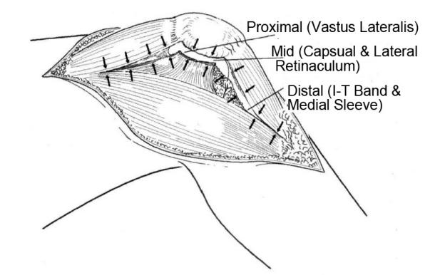 ValgusKnee(Ⅲ)CoronalPlaneZplastyinLateralApproach