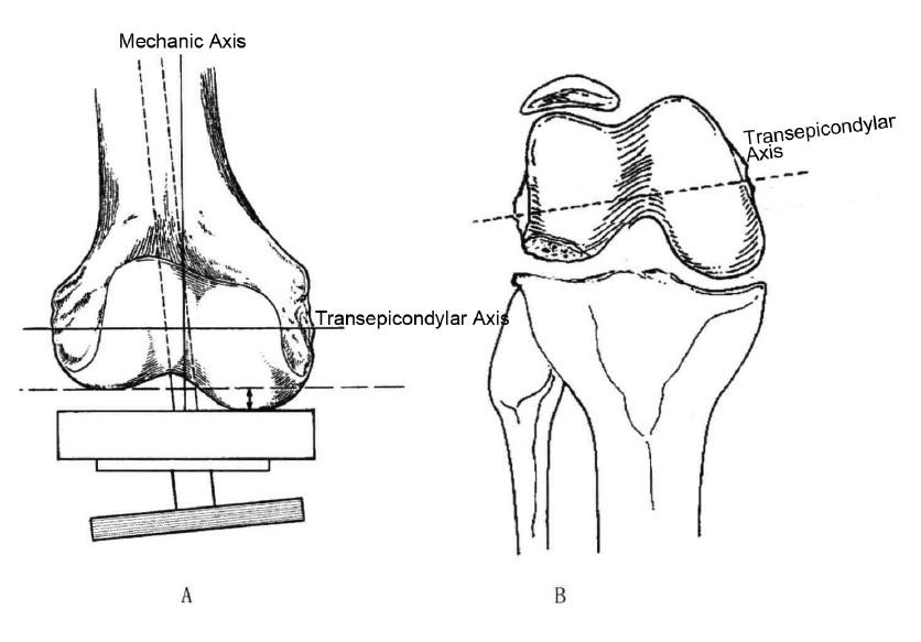 Valgus Knee(Ⅳ)Bone Preparation