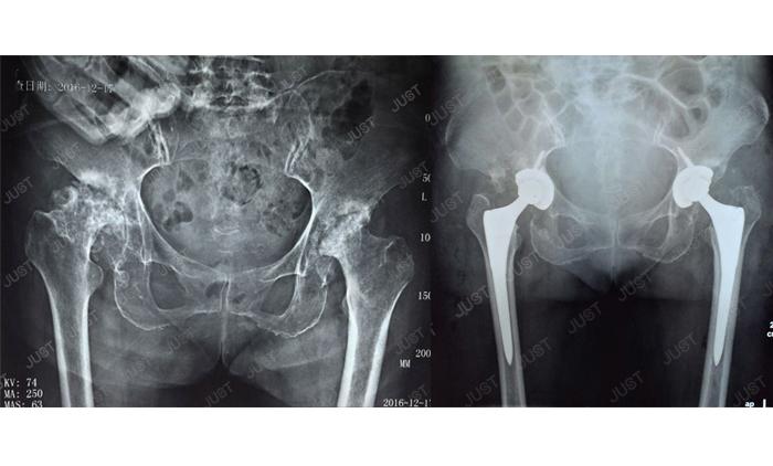 Conjunto de imágenes de rayos X SOLO: articulación de la cadera