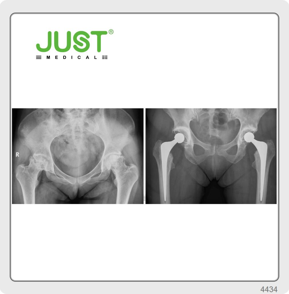 Taich Hip Joint System
