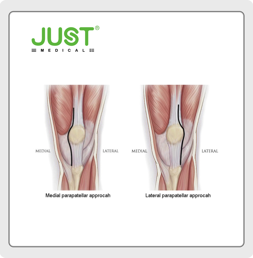 Valgus Knee(II)-Approach
