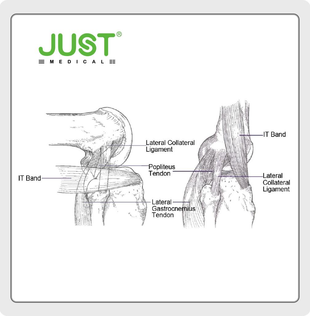 Valgus Knee(Ⅴ)Soft Tissue Balance