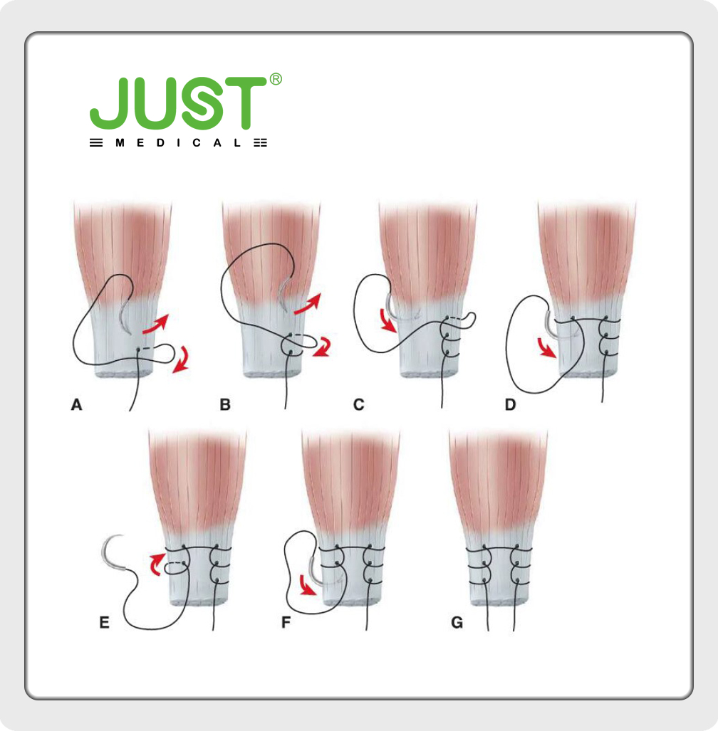 Valgus Knee (Ⅵ) Medial Ligament Advancement