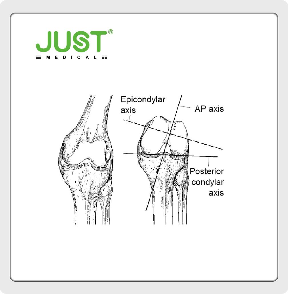 Bone structure of knee joint-femur
