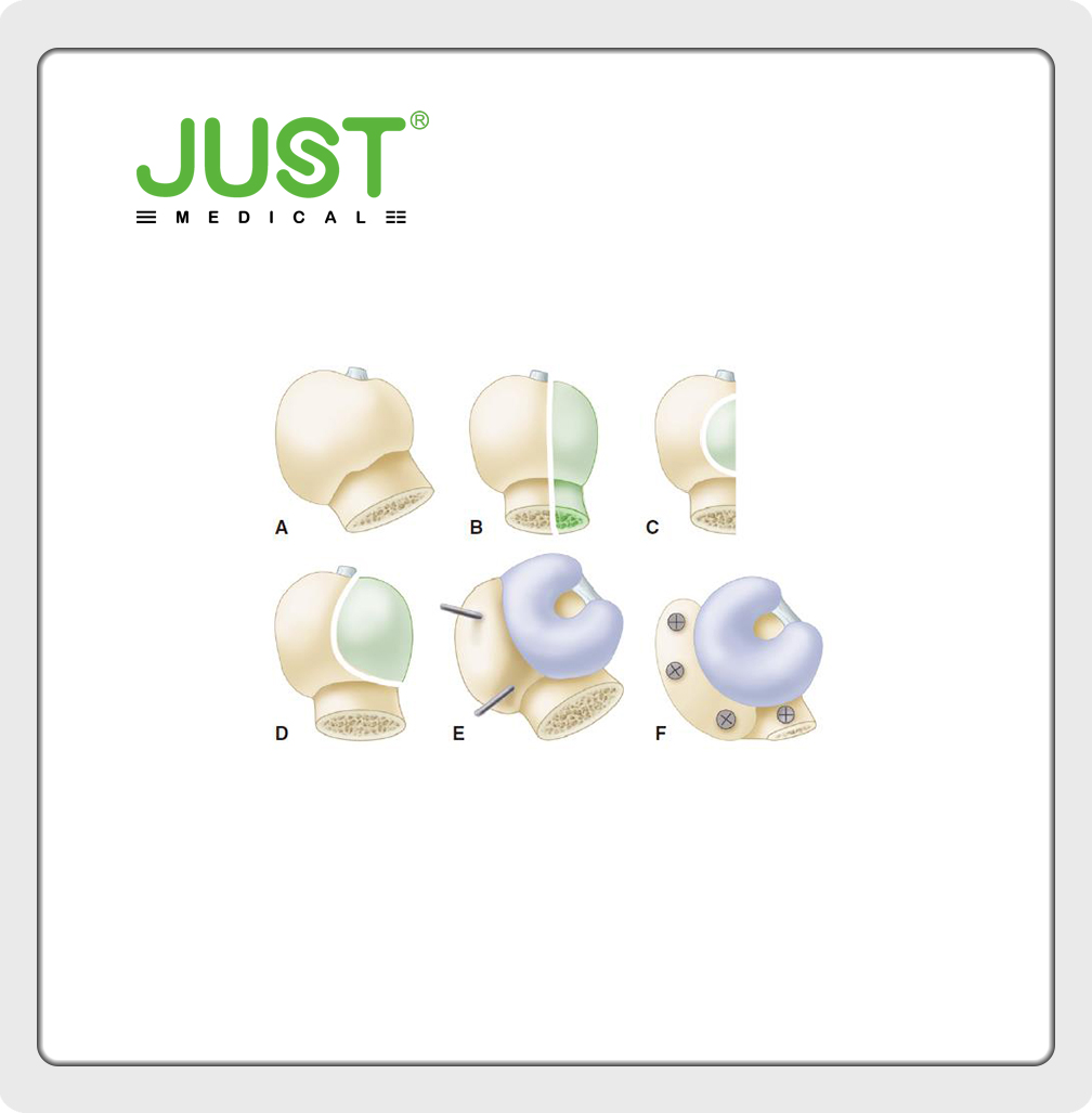 Surgery of DDH of acetabulum Ⅱ